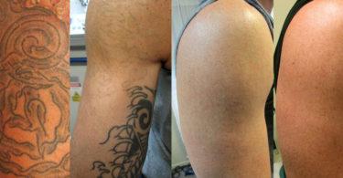 Qual a melhor forma de remover uma tatuagem