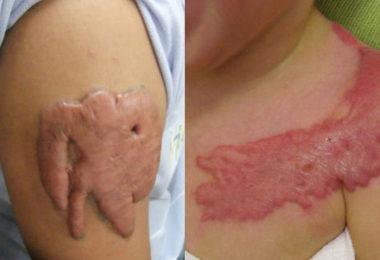 Remoção de Tatuagem - Cicatriz de Queloide em tatuagem