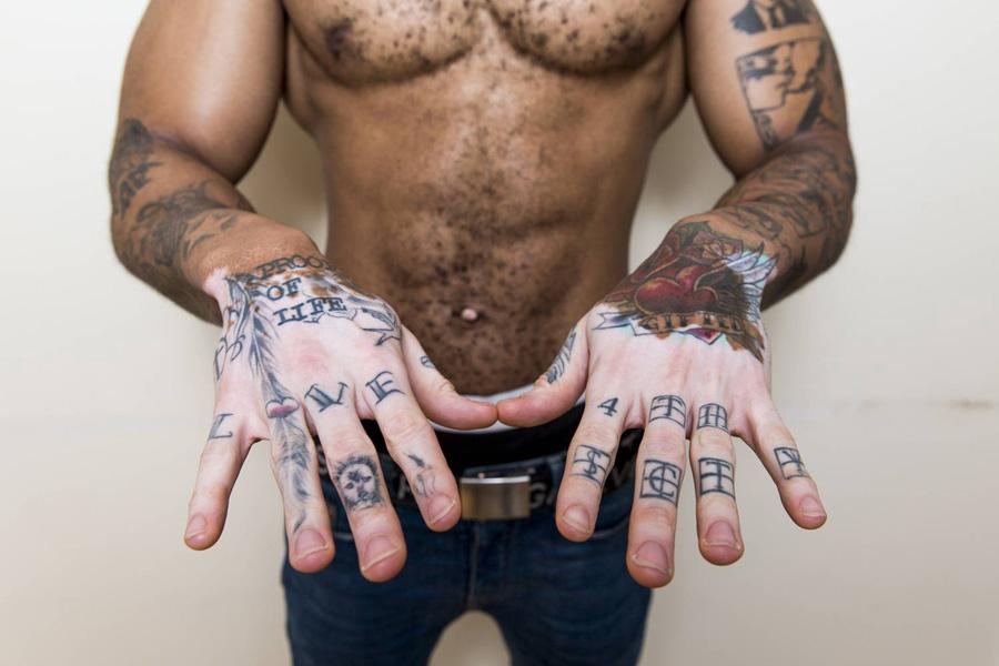 Tatuagem e vitiligo