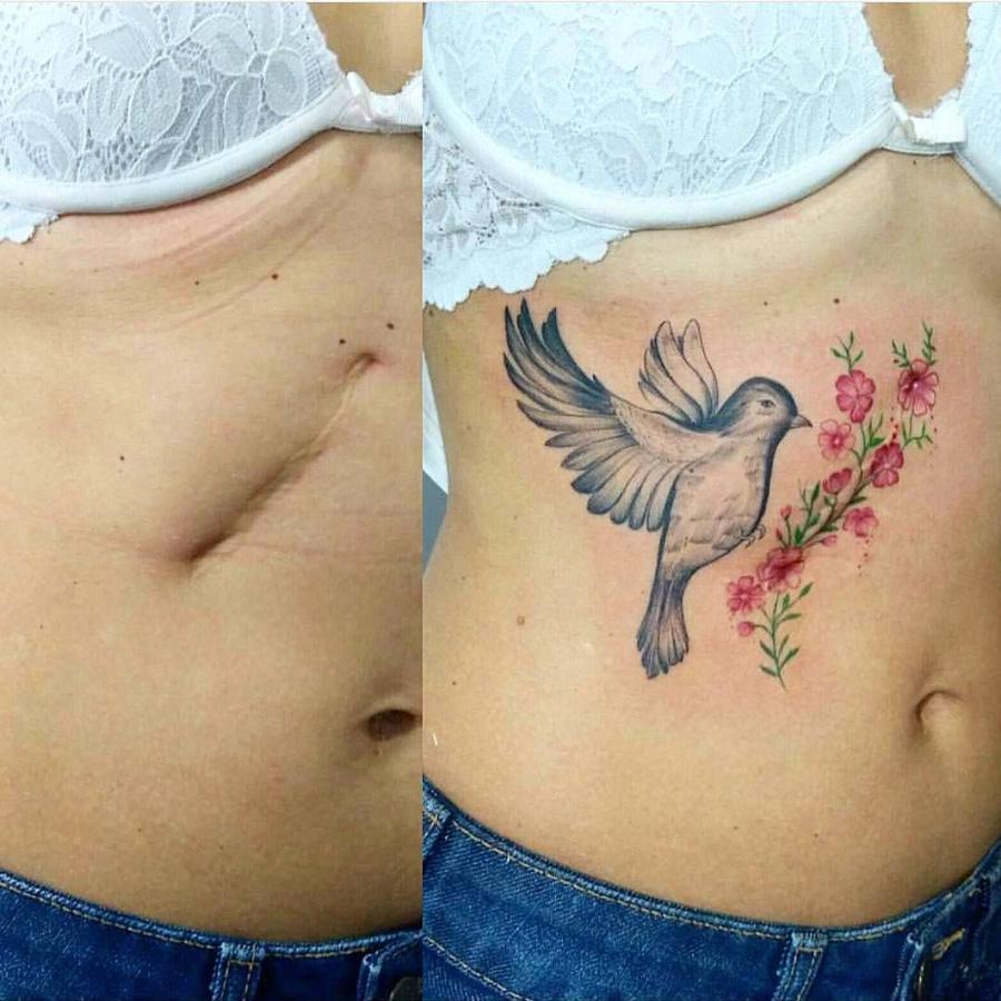 Tatuagem para cobrir cicatriz